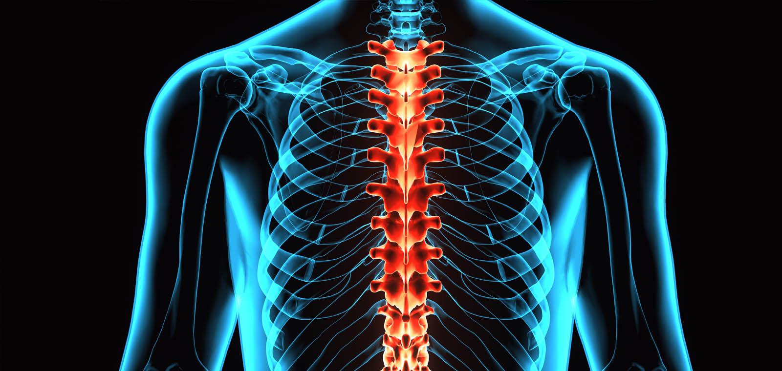 Moreno Spine & Scoliosis